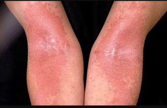 Reduce Eczema Symptoms with These Tips from Grahams Skincare